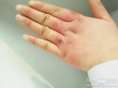 凍瘡是由於皮膚哪一部分受損而引起的