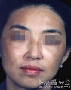 去黃褐斑有哪些方法,中醫如何治療黃褐斑