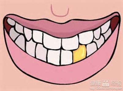 日常生活中牙齒美白的小方法