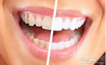 專家解讀冷光美白牙齒多少錢